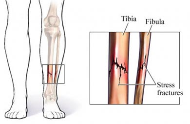What Do Stress Fractures Shin Splints And Foot Pain Have In Common Sparta Science Movement Vital Sign