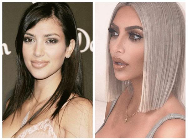 El antes y después de famosas que se quitaron las bolsas de