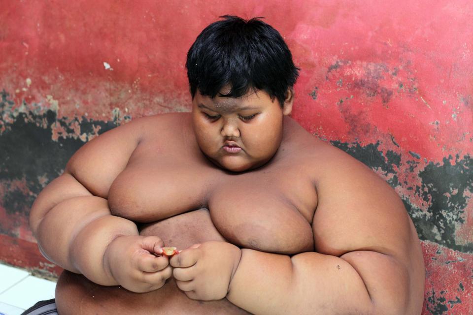 Cómo pudo recuperar su vida el niño más obeso del mundo