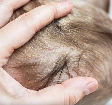 Escamas en la piel del bebé