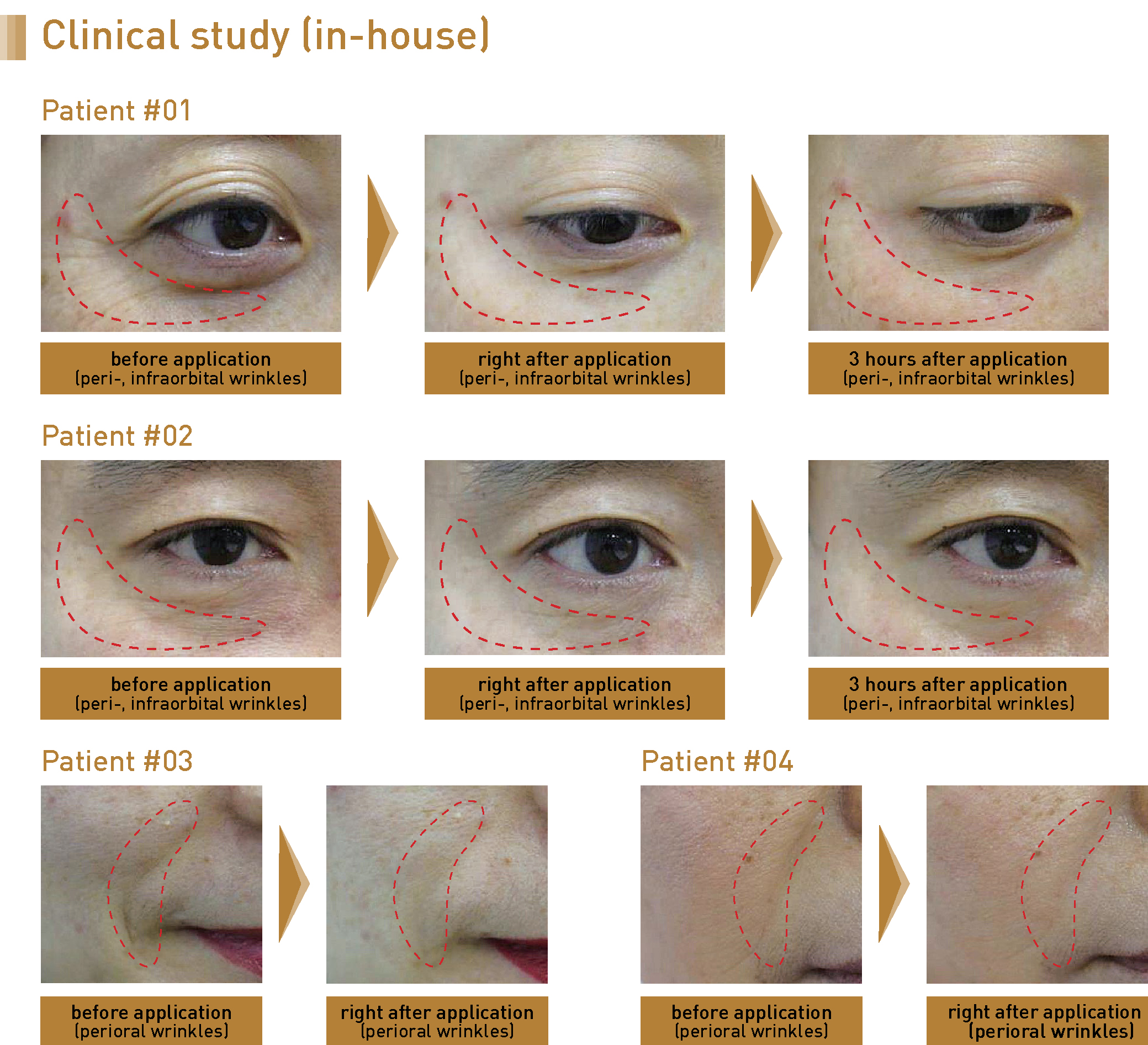 Clinical Study - EYERIS