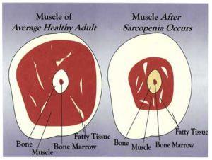 Muscle Mass, Strength, and Longevity