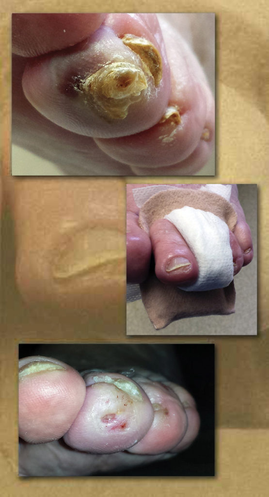 Treatment of distal toe calluses and ulcerations