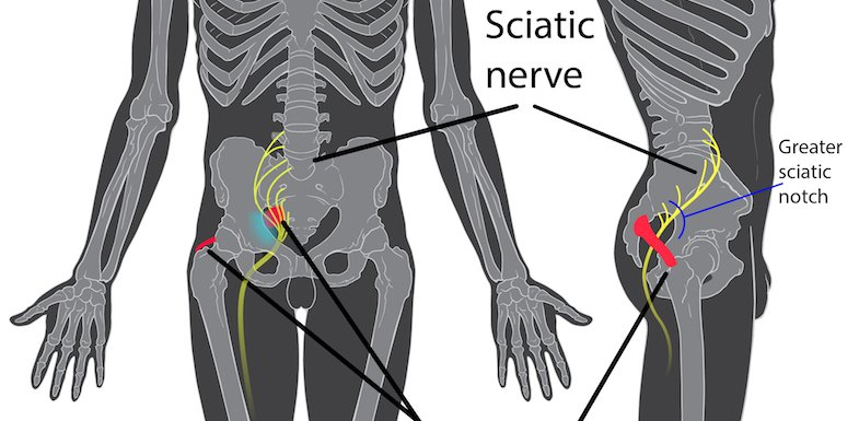 Would A Sciatica Massage Help Relieve My Pain? - Pain Doctor