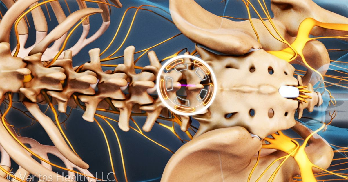Surgery for Lower Back Pain