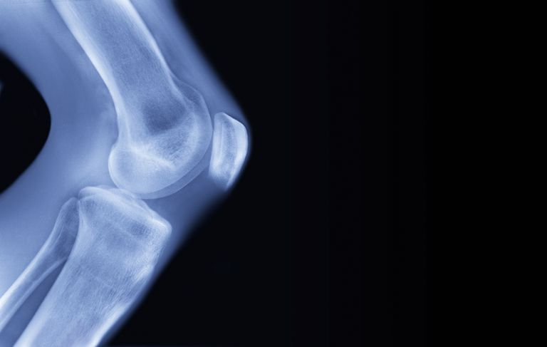 The Role of Joints in Your Body