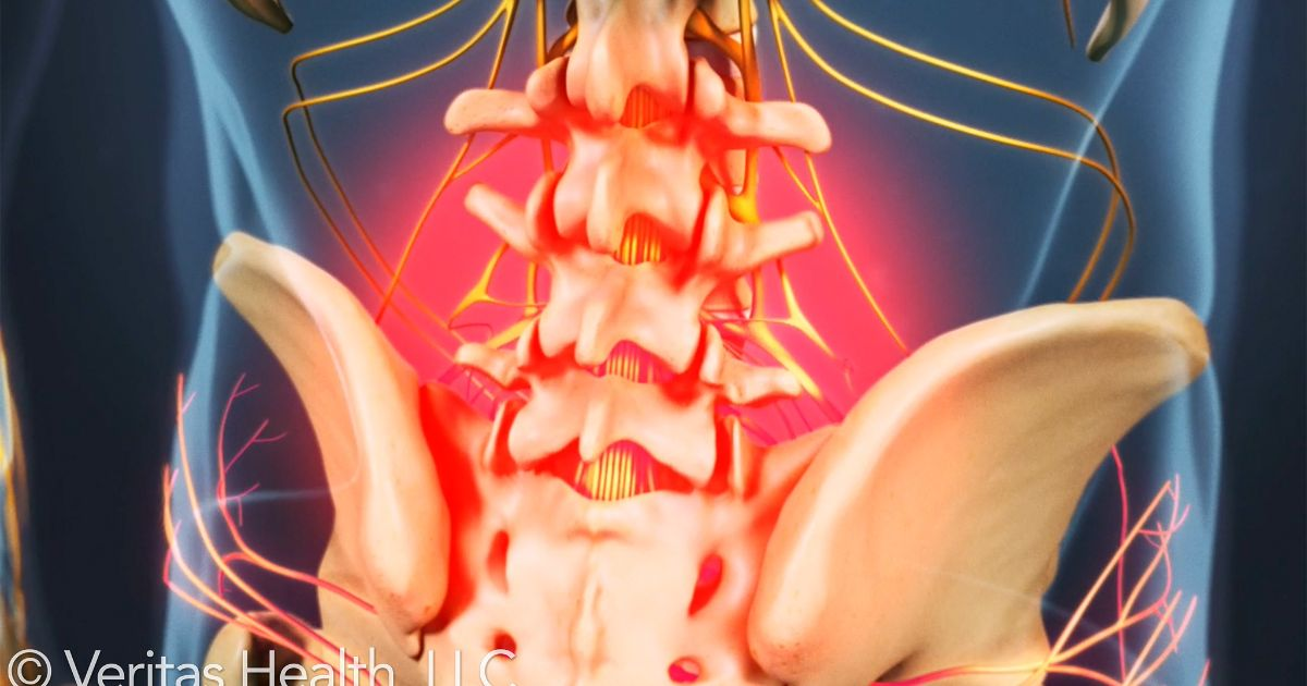 3 Symptoms That May Indicate You Have Lumbar Degenerative Disc Disease