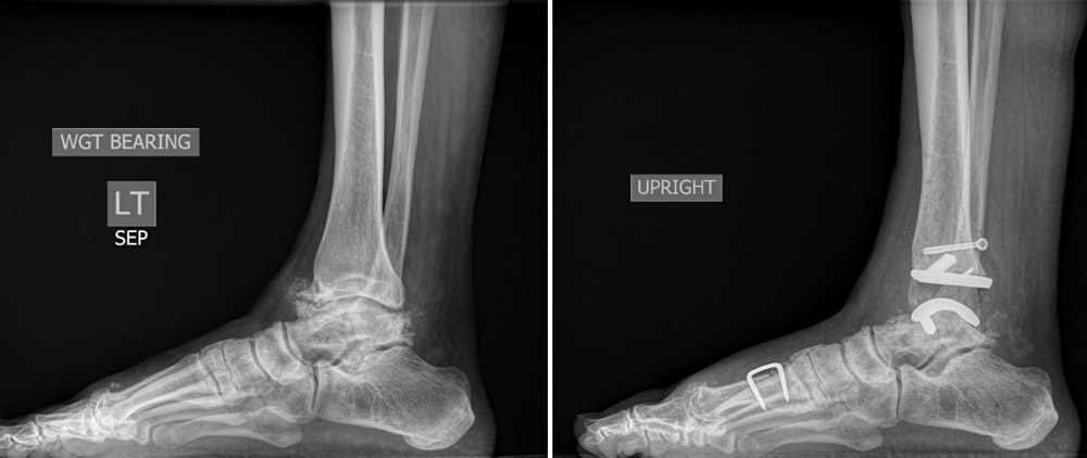 A New Frontier in Ankle Replacements