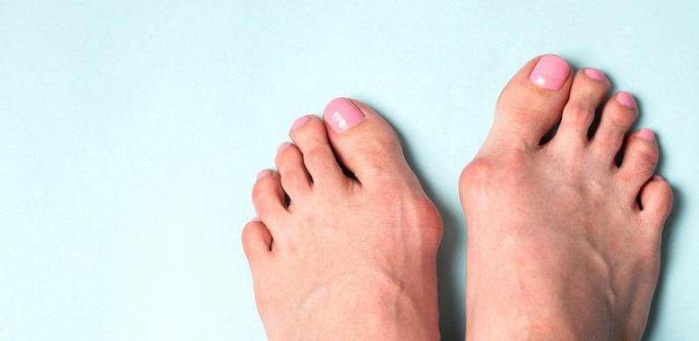 5 Signs You May Be Dealing With A Bunion
