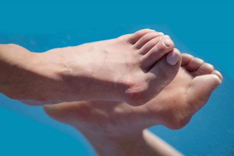 Bunions, Hammertoes & Crooked Toes Are Serious and Often Need Correction