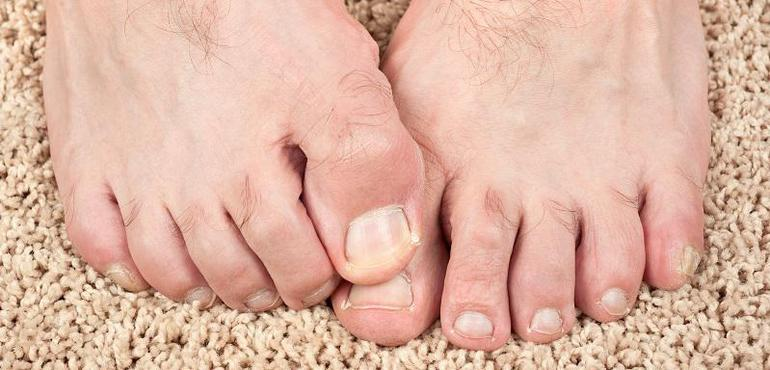 Big Toe Joint Exercises To Restore Movement After Bunion Surgery