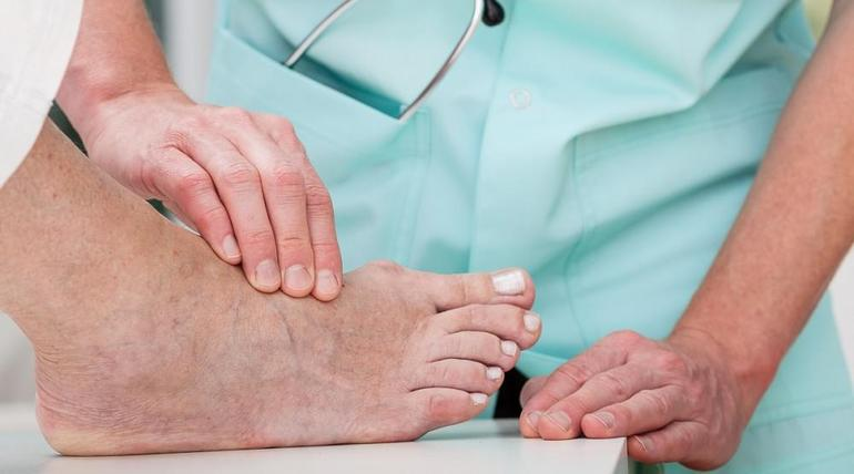 What to Expect Before & After Minimally Invasive Bunion Surgery