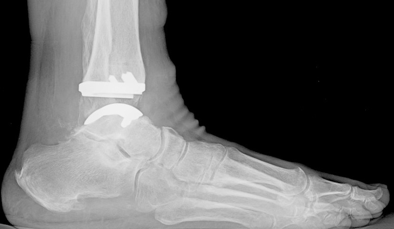 Ankle Replacements Take Off as Devices Appear Durable