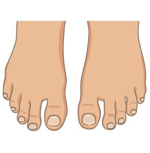 Common Causes Of Second Toe Pain