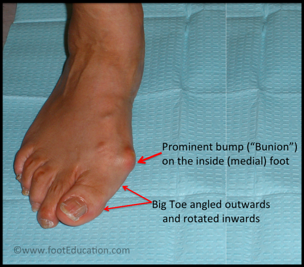5 things you probably didn't know about bunions
