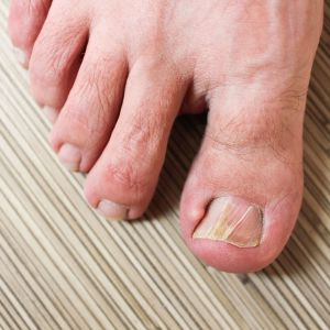What Causes Big Toe Joint Arthritis?