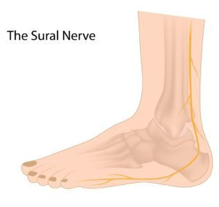 Treating Sural Nerve and Lower Leg Pain