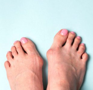 Treating Bunions During The Summer