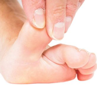 Understanding Flexible and Rigid Hammer Toes