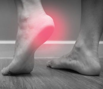 Why Plantar Fasciitis Cases Increase In The Summer