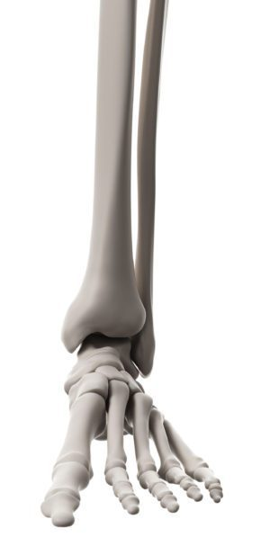 Treating Talar Neck Fractures In The Foot