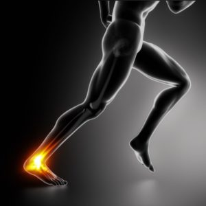 5 Injuries Brought On By Ignoring Ankle Sprains