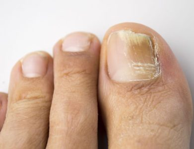 Why Won't My Toenail Fungus Go Away?