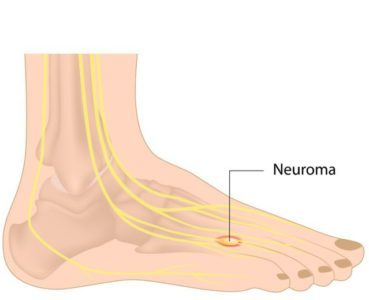 Treating and Preventing Neuromas Of The Feet