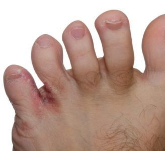 The Causes, Symptoms and Treatment Options For Athlete's Foot