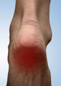 Why Does My Child Have Heel Pain?