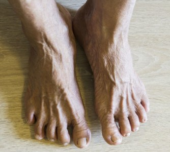 Ankle Fractures Can Be Death Sentences For Seniors