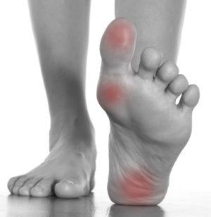When Your Heel Pain Isn't Plantar Fasciitis