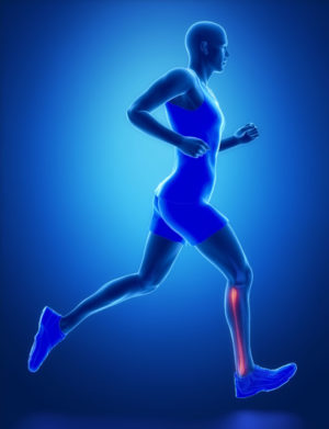 What Are Osteoid Osteomas?