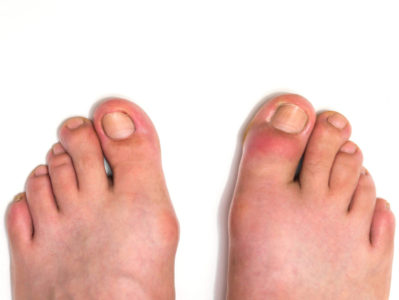 Signs Of COVID-19 On Your Feet