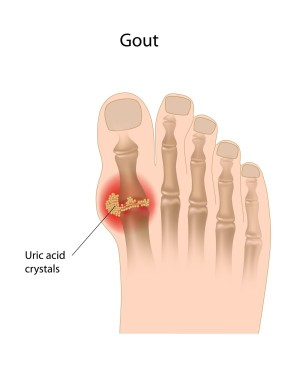 What is Gout?