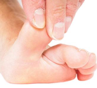 Understanding Flexible and Rigid Hammer Toes