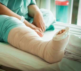 5 Signs That There May Be A Problem With Your Foot Cast