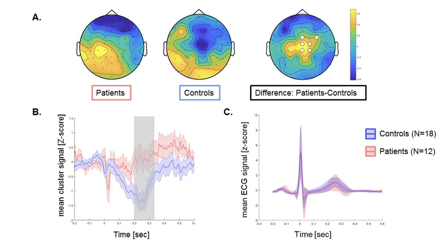 NeuroImage: Altered Interoceptive Bodily Processing in Chronic Pain