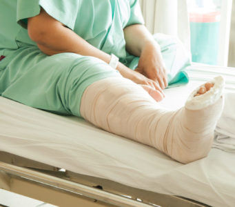 What Should I Know Before Foot Surgery?