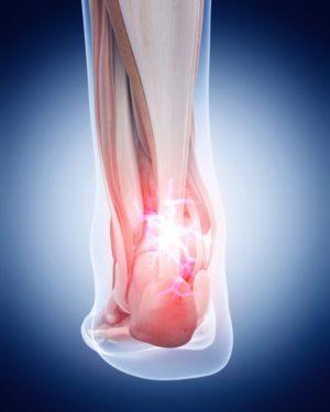 Treating Tenosynovitis Of The Achilles
