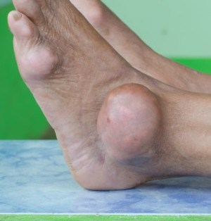Gout May Increase A-Fib Risk