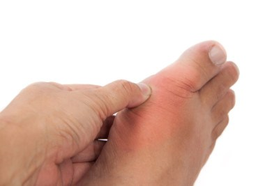 Sprained Toe Diagnosis and Treatment