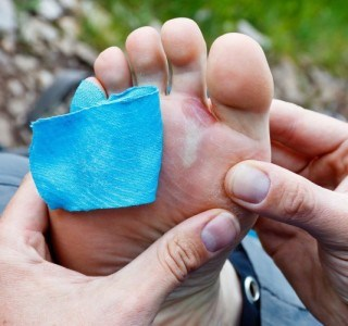 Should You Pop a Blister on Your Feet?