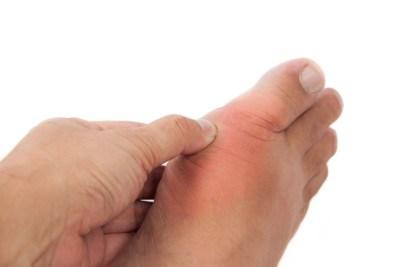 Sprained Toe Diagnosis and Treatment
