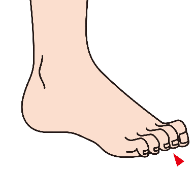 Causes and Treatments of Hammertoe