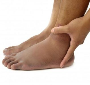 5 Reasons Your Ankles Swell