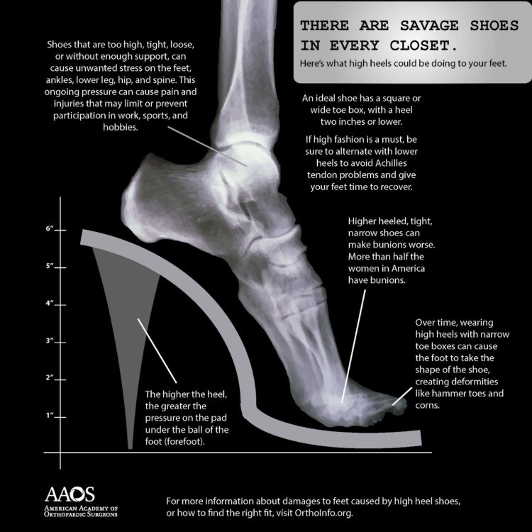 What High Heels Are Doing To Your Feet