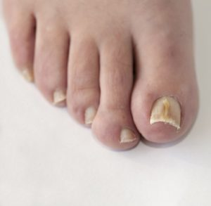 Top 7 Causes of Toenail Fungus and How to Fix Them