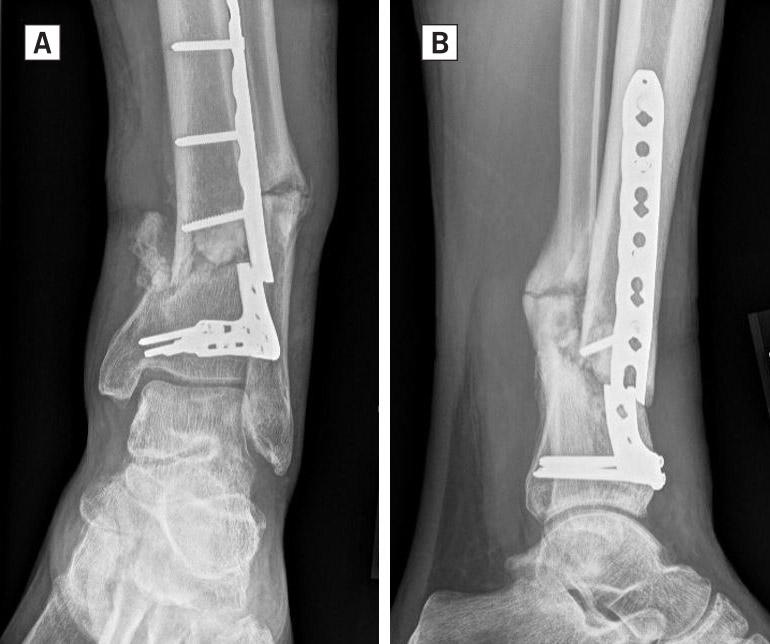 Reconstructing Nonunions of the Distal Tibia