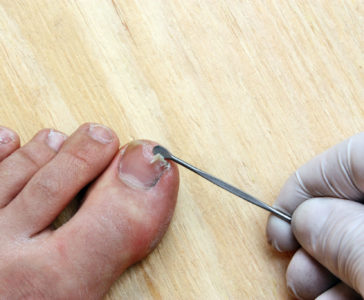 What To Do If Your Toenail Is Falling Off
